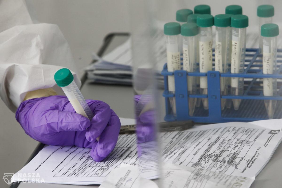 Przeciwciała SARS-CoV-2 szybko mogą znikać z organizmu