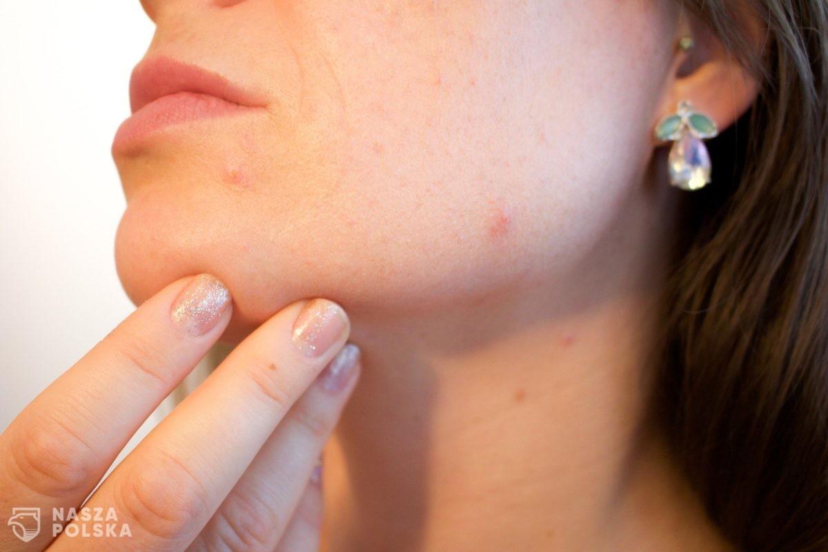 Blisko połowa Polek ma choroby skóry