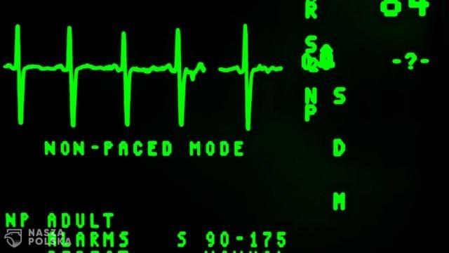 https://naszapolska.pl/wp-content/uploads/2020/10/electrocardiogram-16948_1920-640x360.jpg