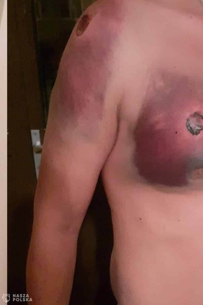 Uczestnik Marszu Niepodległości został postrzelony 15 razy przez Policję