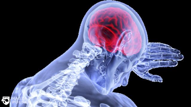 Zaburzenia neurologiczne coraz częściej dotykają Polaków. Rośnie wyzwanie dla systemu opieki społecznej i zdrowotnej
