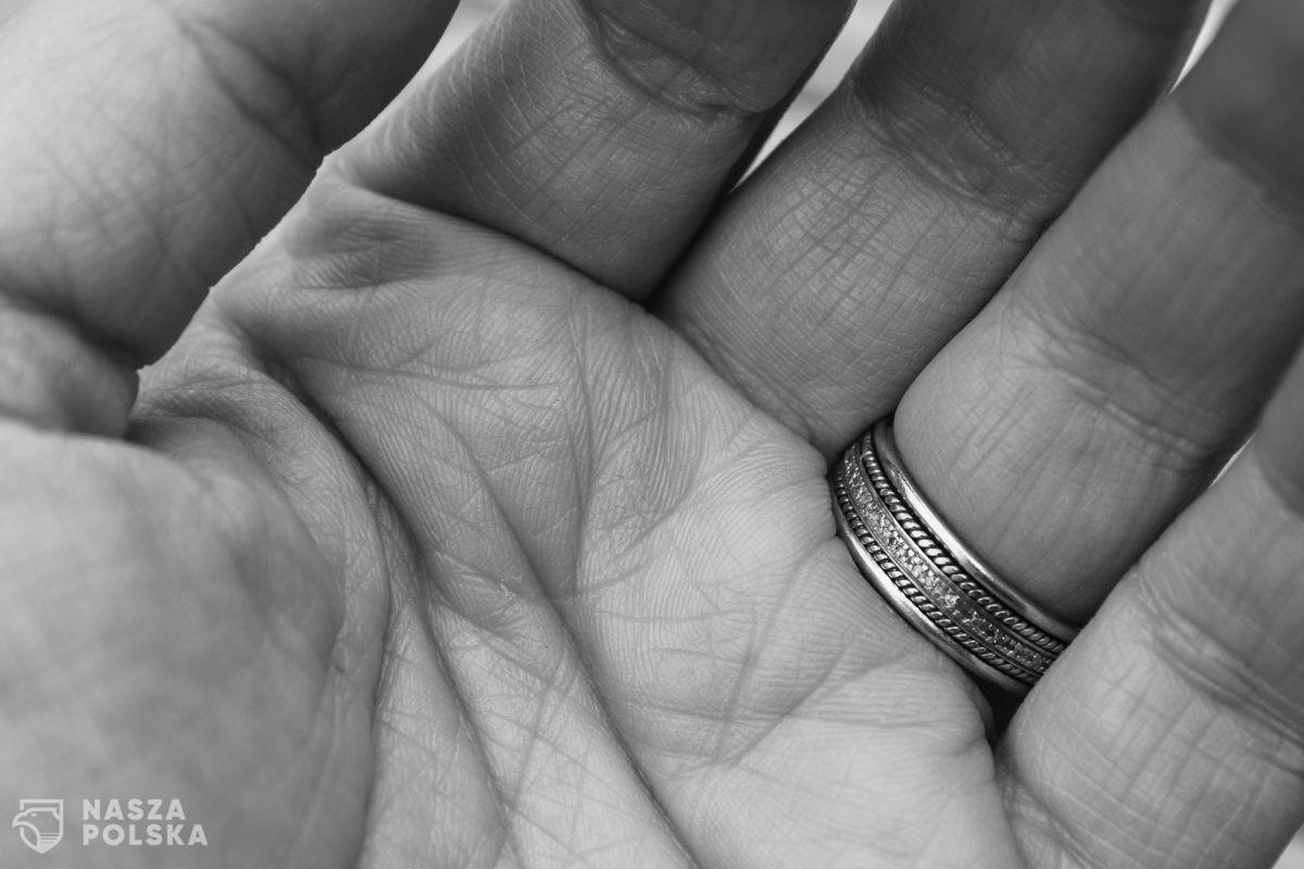 Dwie trzecie społeczeństwa może cierpieć na stany zapalne skóry z powodu rygorystycznej higieny